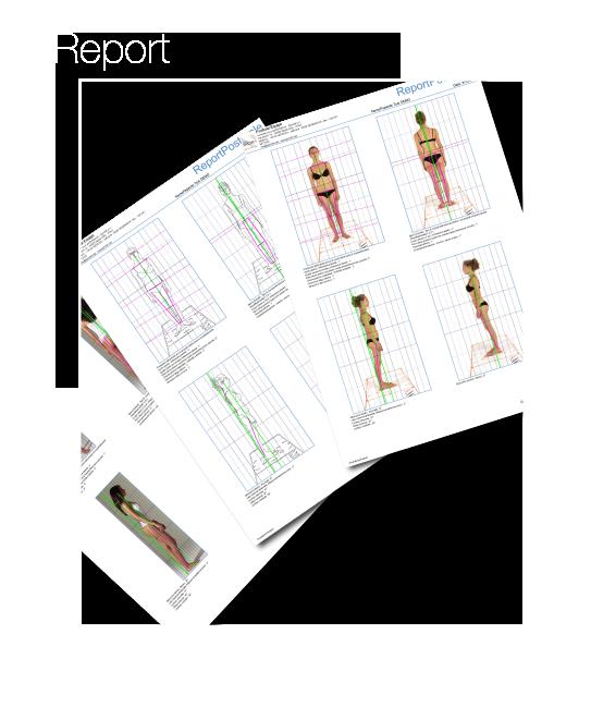 Report Analisi Posturale - Esempi di PDF